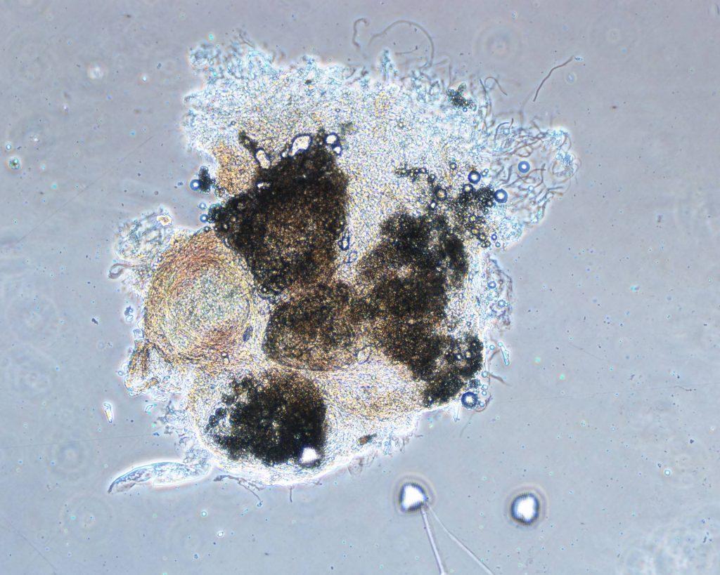 SebocyteModel